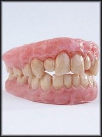 Teeth1 cv
