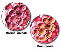 Pneumonia 20image cv