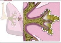 Cysticfibrosis cv