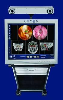 Cbyon cart2 cv
