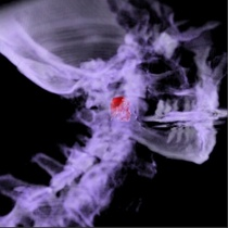 Spine tumor1 cv