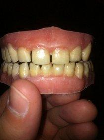Teeth cv
