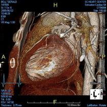 Heart ct 3 sec 58 cv