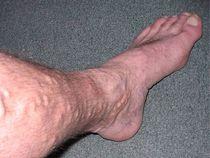 Varicose veins causes 1  cv