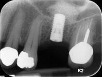 230px straumann implant sinus lift cv