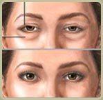 Eyesthetica oculo facial pic1 cv