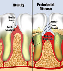 Periodontal disease cv