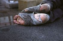 Homeless feet cv