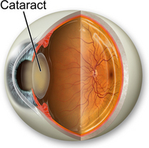 Cataract cv