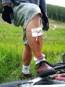 450px improvised first aid   bandage on leg 1  cv