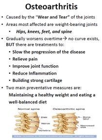 Osteoarthritis cv